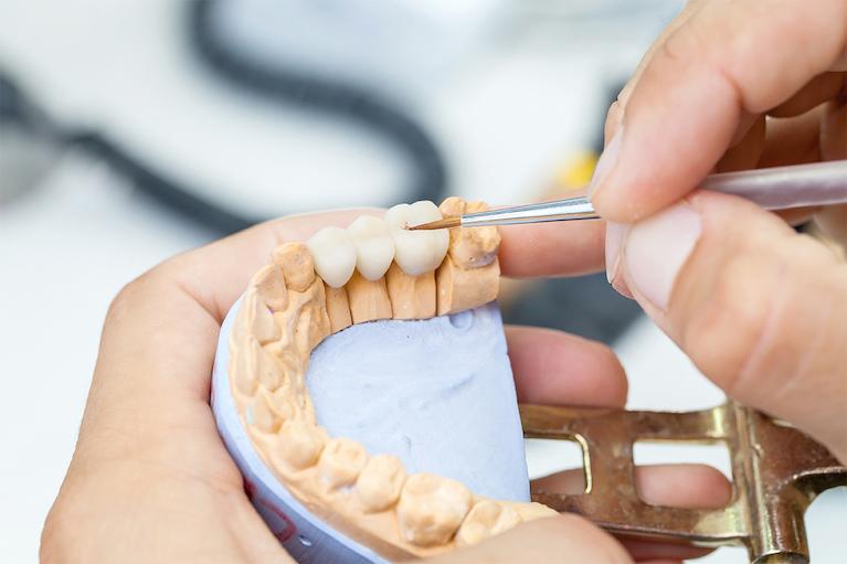 審美歯科専門の技工士